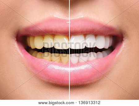 Woman Teeth Before and After Whitening. Happy smiling woman. Dental health Concept. Oral Care concep