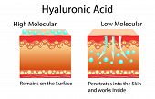 Vector Illustration With Hyaluronic Acid In Skin-care Products. Low Molecular And High Molecular. Is poster