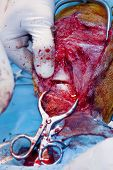 Close Up Of Surgical Incision Into The Bone. Veterinarian Surgery, Fixing Of Wounded Canine Leg. (he poster