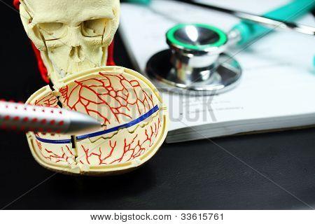 Skull Patient Case!