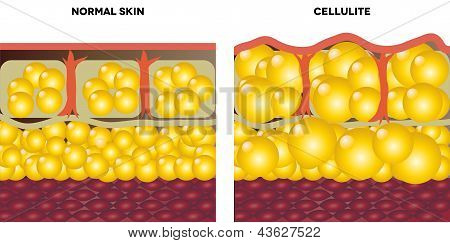 Cellulite and normal skin.
