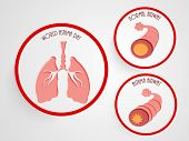 foto of bronchus  - World Asthma Day concept with illustration of asthmatic bronchitis on grey background - JPG