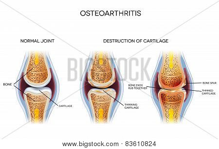 Osteoarthritis, Destruction Of Cartilage