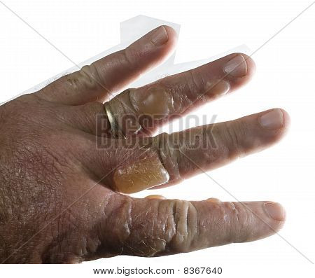 Blistered Fingers