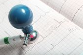 picture of ecg chart  - Electrode and recorded ECG chart - JPG