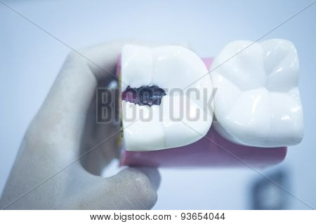 Dental Tooth Model Cast Showing Decay Enamel Roots