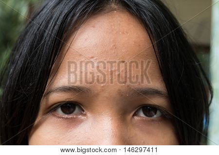 acne on skin face of girl teenage