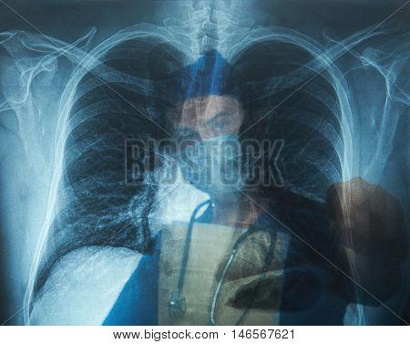 Man Nurse Pointing On Lung