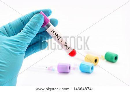 Blood sample for H5N1 influenza virus testing