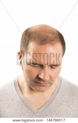 hair loss issue baldness alopecia black background