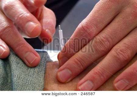 Needle Insertion