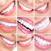 Постер, плакат: Улыбающиеся женщина рот с здоровых зубов Коллаж