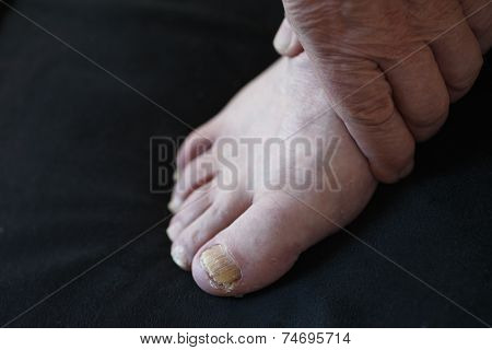Toenail fungus on man
