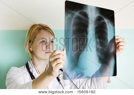 Doctor examining a lung xray