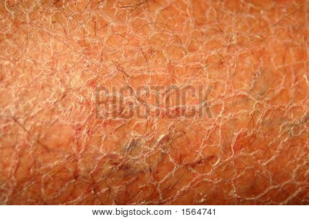 Dry Skin Background