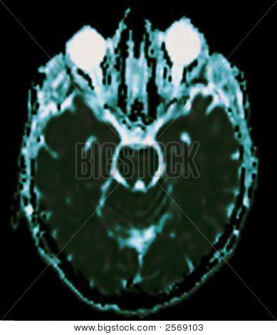 Mri Of Head And Brain