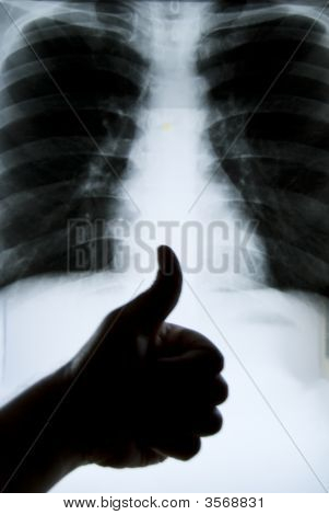 Great Health For Lung X-Ray