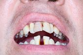 stock photo of prank  - Rotten and crooked teeth of men - JPG