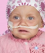 pic of leukemia  - Adorable baby with a headscarf beating the disease isolated on white background - JPG