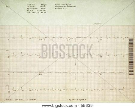 Real 12 Lead EKG