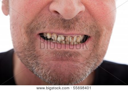 Close-up Of A Man's Mouth Showing Teeth