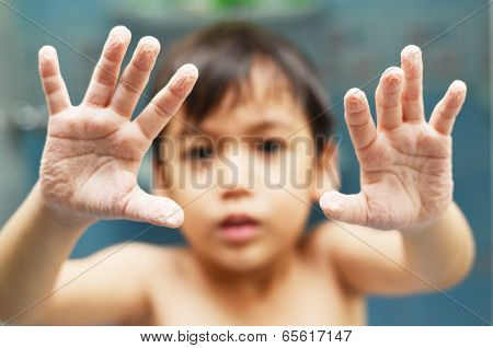 Little Boy Showing Withered Hand After Shower