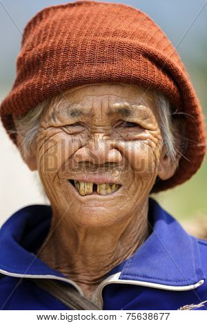 FU CHI FA, THAILAND, MARCH 4, 2011: A woman farmer is posing in the countryside, showing her damaged teeth in Fu chi fa, north Thailand