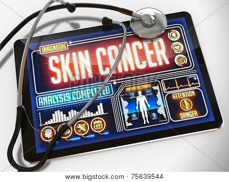 Skin Cancer on the Display of Medical Tablet.
