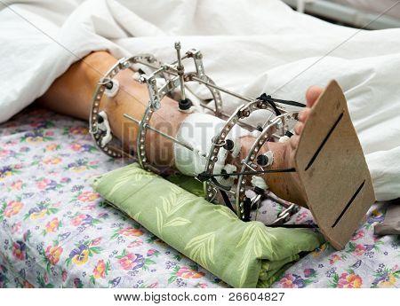 Leg In Ilizarov's External Fixator, Ilizarov's Apparatus