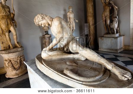 The Dying Gaul formerly known as the Dying Gladiator