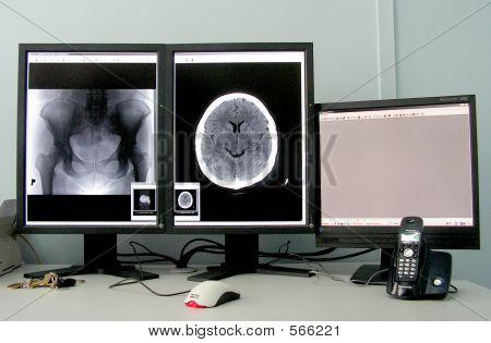 Computer Tomography