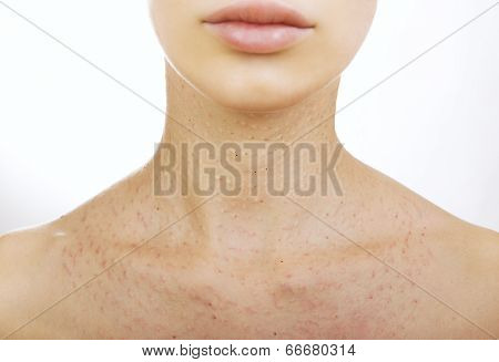 Female Neck After Hyaluronic Injection (collagen Biorevitalization)