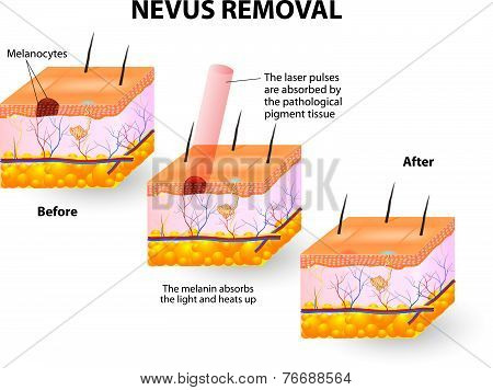 Nevus Removal