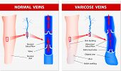 image of pressure vessel  - Varicose vein forms in a leg - JPG