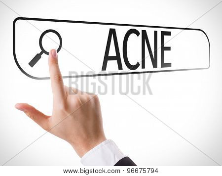 Acne written in search bar on virtual screen