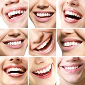Beautiful smiles set. Perfect wide smiles with great healthy white teeth, over white. Dental care, w poster