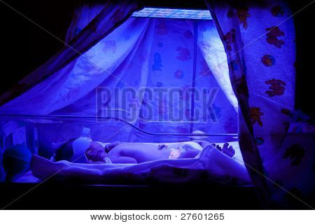 Baby Under Phototherapy