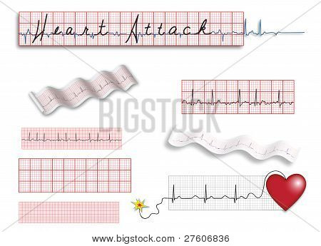 Pagina completa de EKG tiras con título e ilustraciones de puntos