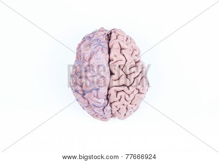 Human Brain Isolated On White