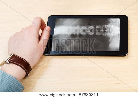 Scientist Analyzes Vertebral Column On Tablet Pc