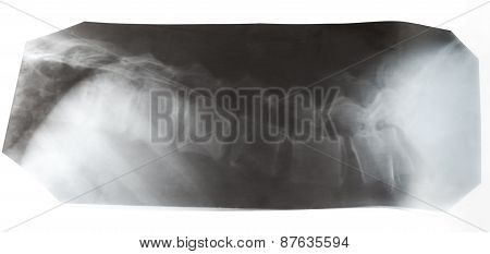 X-ray Picture Of Human Vertebral Column Isolated