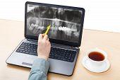 stock photo of radiogram  - dentist analyzes X - JPG