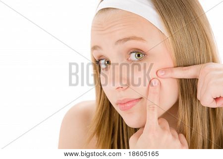 Akne Gesichtspflege Teenager weiblich Pickel quetschen