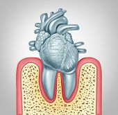 Dental Care Or Oral Health And Heart Disease Hygiene Concept Caused By Tooth Plaque And Gum Infectio poster