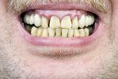 stock photo of gingivitis  - Yellow teeth diseased gums yellow men - JPG