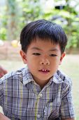 pic of false teeth  - Portrait of asian boy with alloy false teeth - JPG