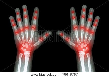 Rheumatoid Arthritis ( X-ray Both Child Hands And Multiple Joint Arthritis )