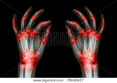 Multiple Joint Arthritis Both Adult Hands ( Gout , Rheumatoid ) On Black Background
