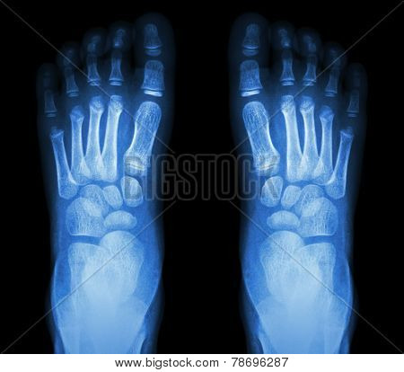 X-ray Normal Child's Foots