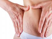 image of broad-bodied  - Woman is testing the skin on his stomach on broadly the presence of stretch marks - JPG